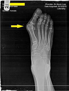 scarless bunion surgery