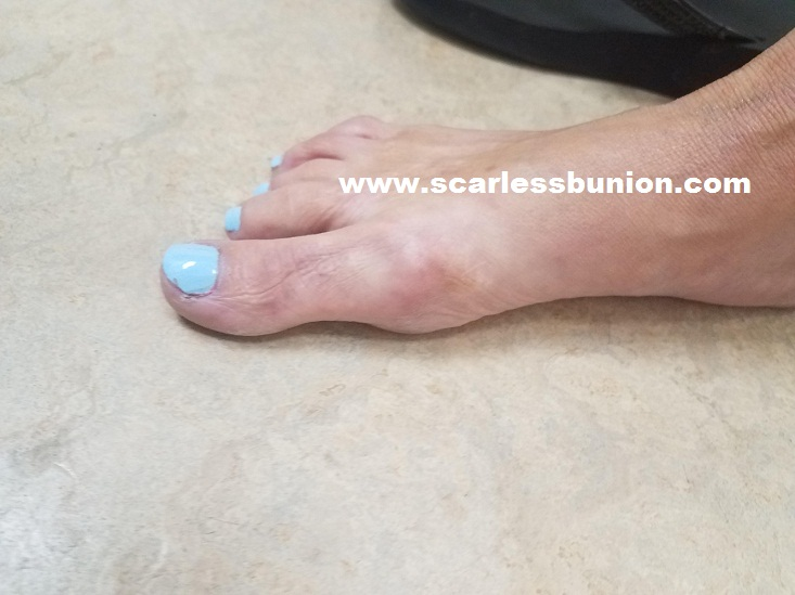 no scar bunion surgery