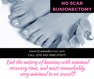 no scar bunionectomy